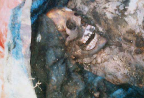 Excavations of Skeletal Remains From an Anthropological Point of View